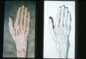 Drawing of a hand by Joseph Lister